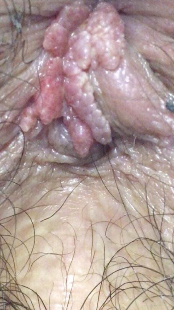 verrugas de hpv no anus do gay