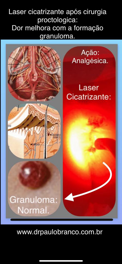 granuloma de cicatrizacao formado pelo laser.