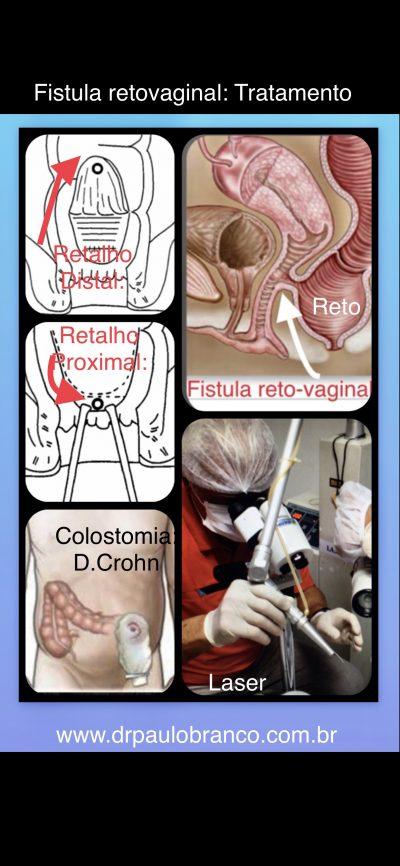 Fistula perianal retovaginal após EPISIOTOMIA