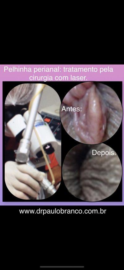 Plicomas perianal tratadas com laser sob anestesia local e sem internação.