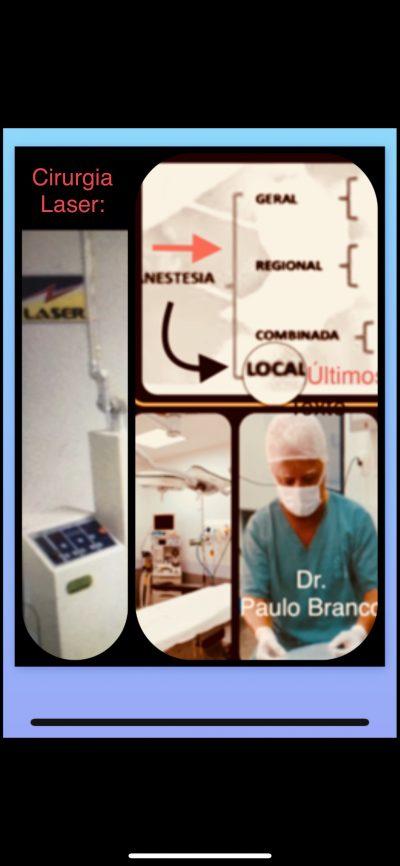 Pelhinhas anais tratadas com laser sob anestesia local