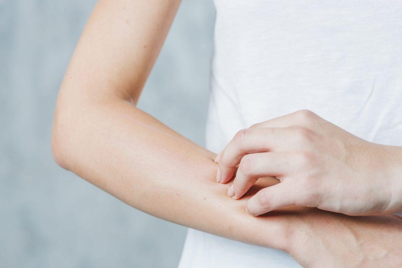 Soulagement de la peau sèche qui démange: 7 remèdes maison - Dr Pingel