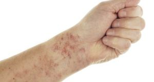 Forearm showing Capillaritis
