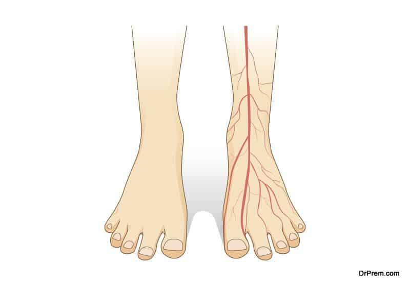 Peripheral Arterial Disease