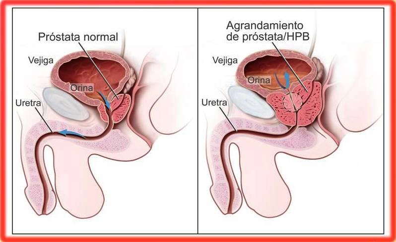 fimosis y prostatitis