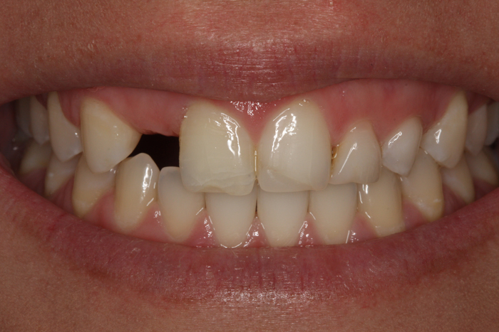Congential Missing Tooth Replaced - Before