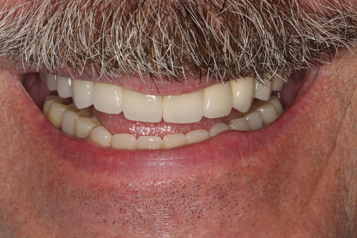 Full Mouth Implant Reconstruction - After