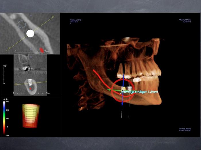 Virtual Implant Surgery