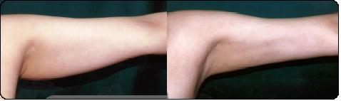 liposuccion_brazo_pre-post