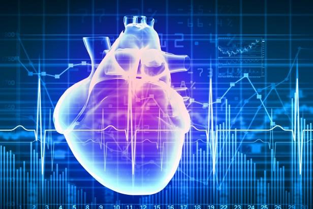 ECG w heart
