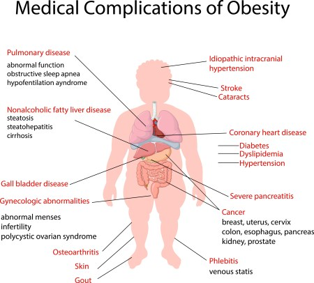 health complications of obesity