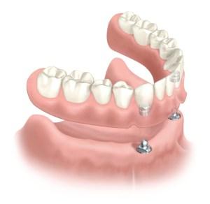 2 implant denture