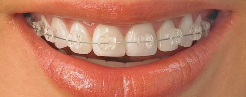 Ceramic braces, Dr Gurs Sehmi, London