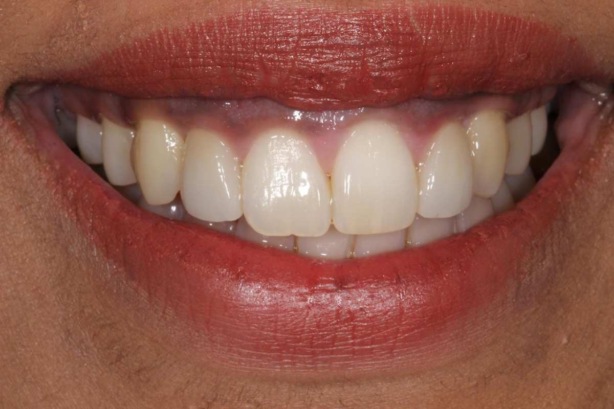 Cosmetic Dentist London, Dr Gurs Sehmi