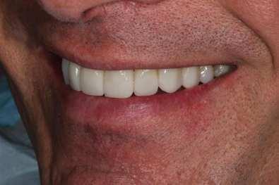 Final Smile