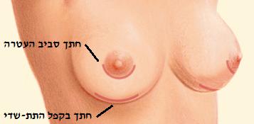 breast enlargement cuts