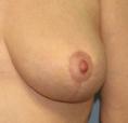 breast lift scar, breast reduction scar