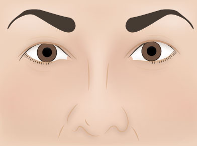 Blepharoplasty Pre Surgery