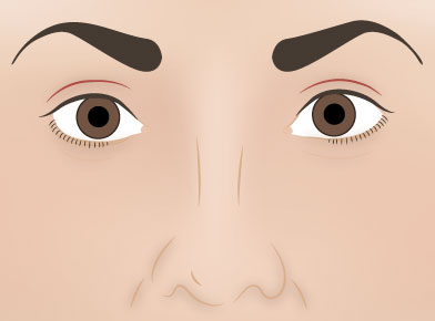 Blepharoplasty Post Surgery