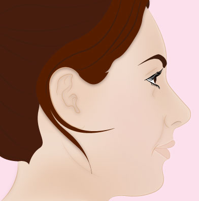 rhinoplasty post surgery
