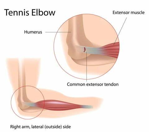 Platelet Rich Plasma (PRP) Effective for Tennis Elbow