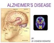 Inflammation Promotes the Progression of Alzheimer's Disease