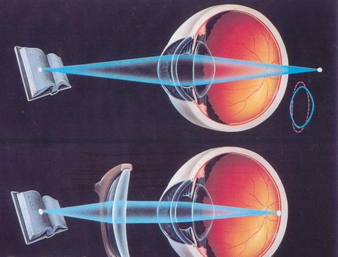 8975f3452f Presbicia o Vista Cansada y cómo se corrige con gafas