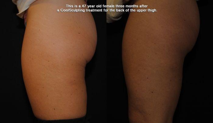 FAT FREEZING Baskin Aesthetic Medicine