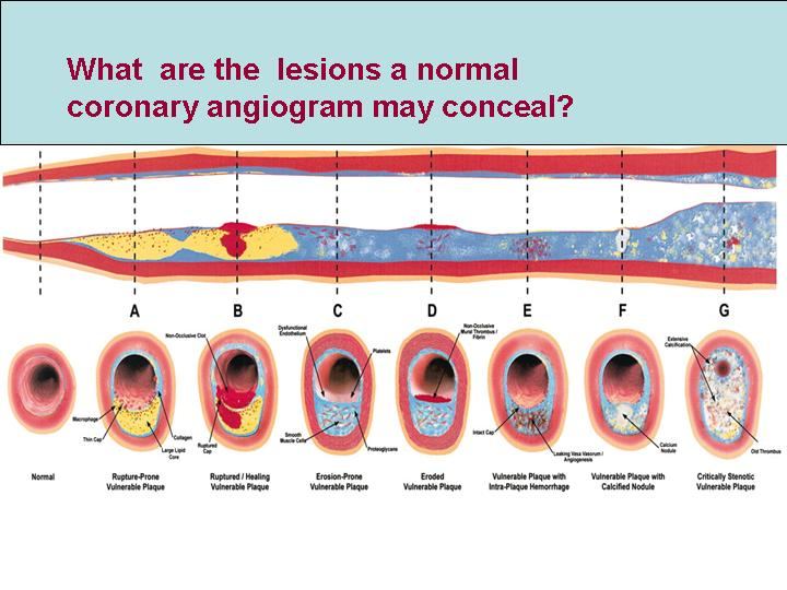 Lesions A to F may be totally missed by conventional coronary angiogram