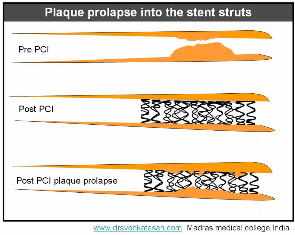 plaque-prolapse