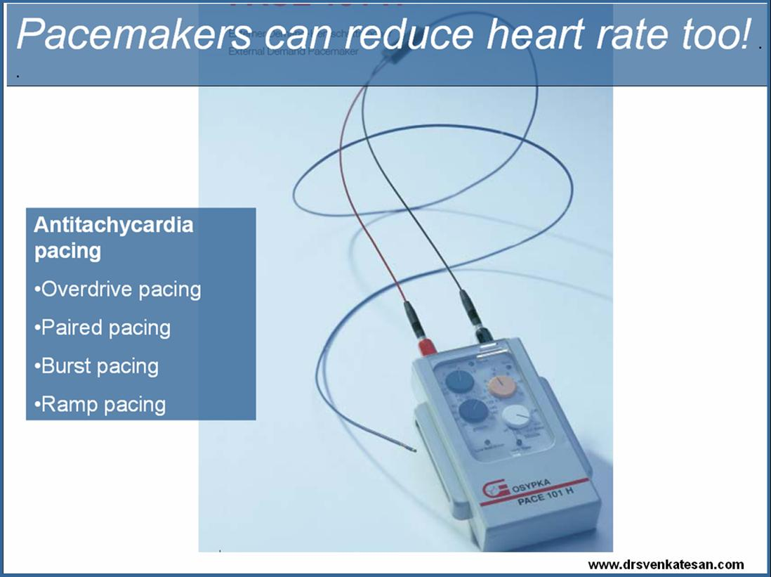 over drive pacing paired pacing anti tachycardia