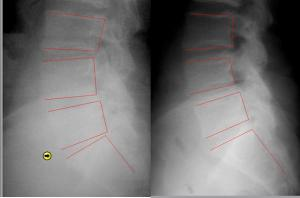 CASE STUDY: This is a 56 year old male who complained of low back pain and shooting down both legs for 22 years. 20 spinal decompression treatments. Left is at the beginning and right is after 20 treatments.
