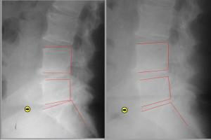 CASE STUDY: This is a 73 year old female who complained of low back pain and constant numbness of both feet for many years. 20 spinal decompression treatments. Left is at the beginning and right is after 20 treatments.