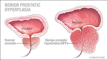 a-medical-illustration-of-a-normal-prostate-and-one-with-benign-prostatic-hypertrophy-original