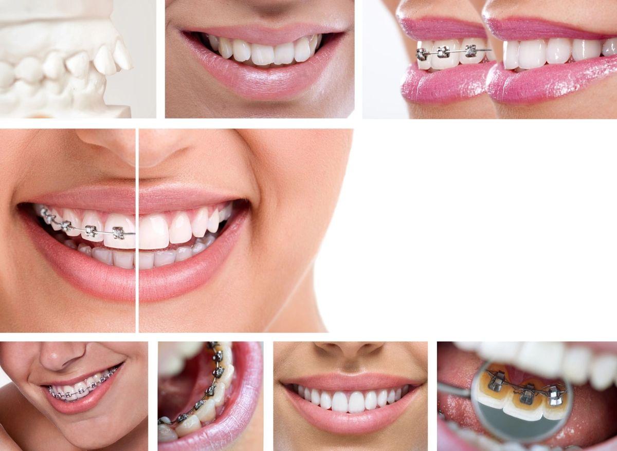 Orthodontists, Orthodontics, Brookfield, Oak Creek, Elm Grove, Waukesha, Orthodontics, braces, Franklin wi orthodontists