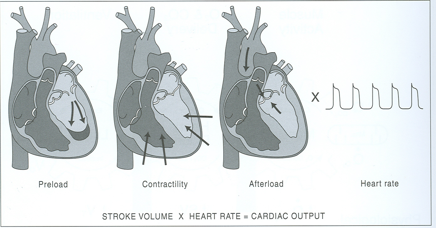 Volume Stroke Causes Symptoms Treatment Volume Stroke