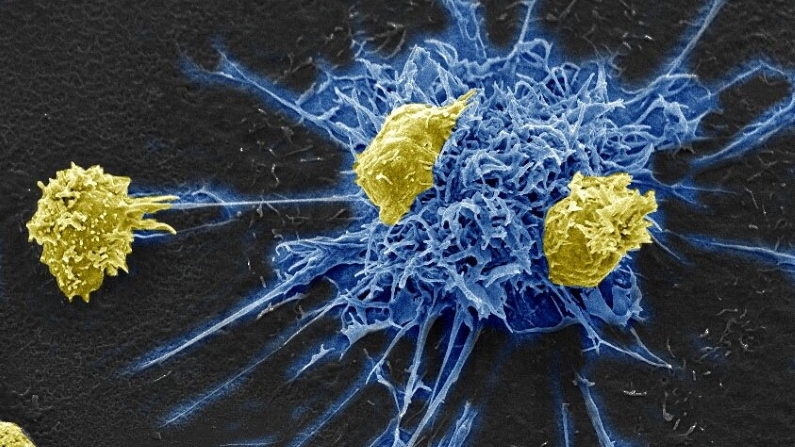 Is HIV Immunotherapy the New HIV Cure?