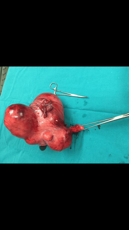 Vaginal kanama leiomiyoma