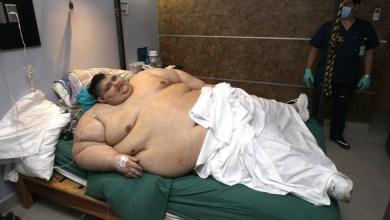 Photo of El mexicano más gordo del mundo supera el COVID-19