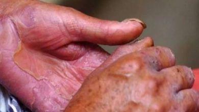 Photo of Se confirman dos casos de lepra en la Zona Maya de Quintana Roo.