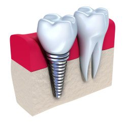 dental implants louisville ky