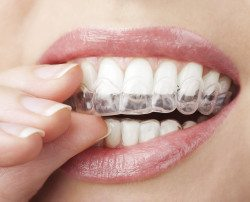 teeth whitening dr westermann louisville ky
