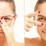 Produk Drw Skincare Untuk Komedo