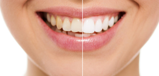 8 Reasons to Whiten Your Smile