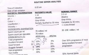 Seminal Analysis