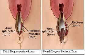 perineal tear 2