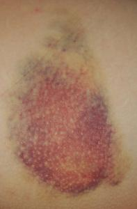 injection bruises