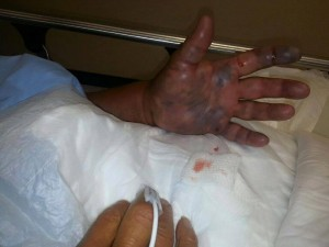 Vibrio Vulnificus, man dies from trigger fish cut, fish diseases that transfer to people,