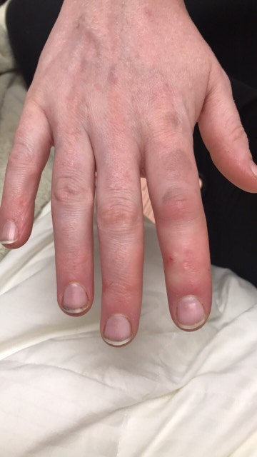swollen finger, fish cuts can be deadly, vibrio