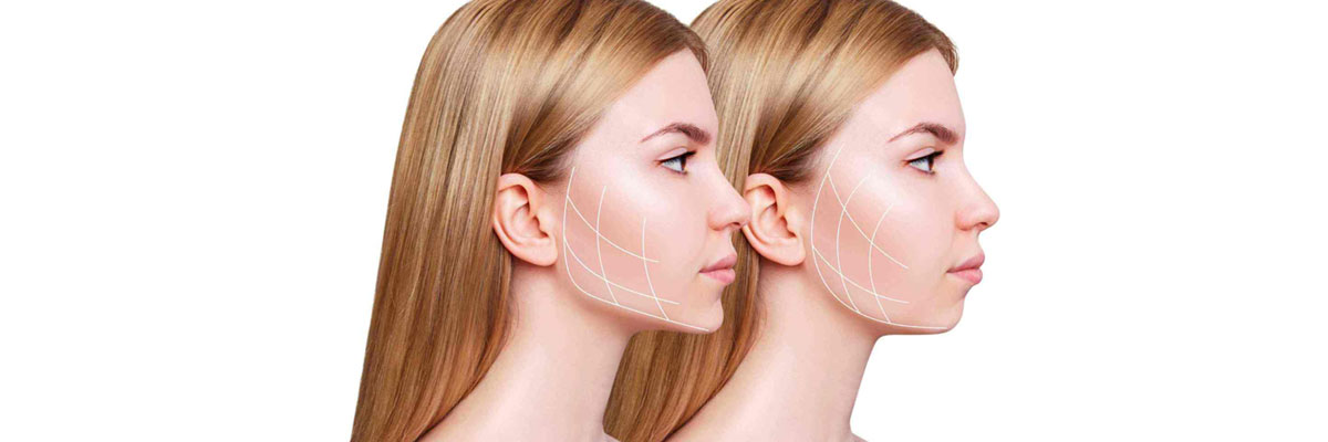 Double Chin Removal- Causes and Removal